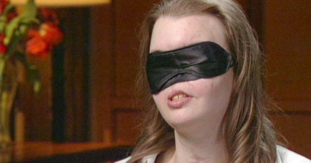 1999-ben elvesztette az arcát, az orvosok most újat műtöttek neki. Így néz ki most a nő!